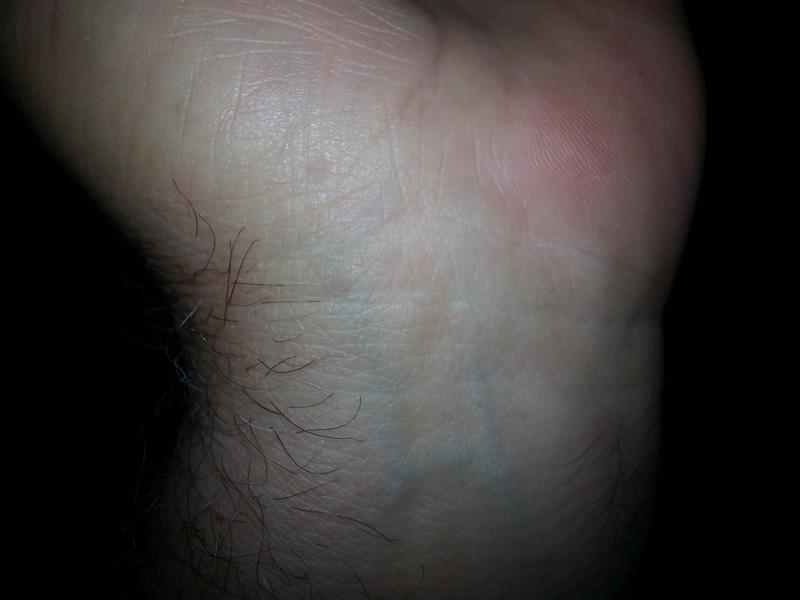 carpel tunnel surgery Ted Zahn wrist